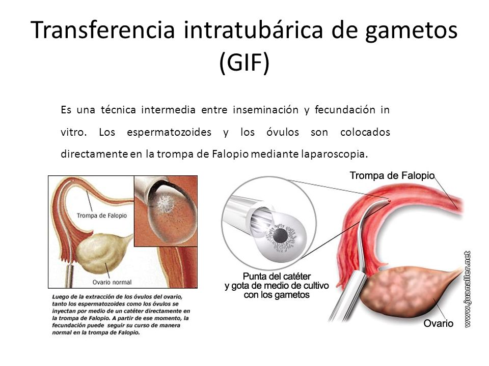 Transferencia intratubárica de gametos (GIF)