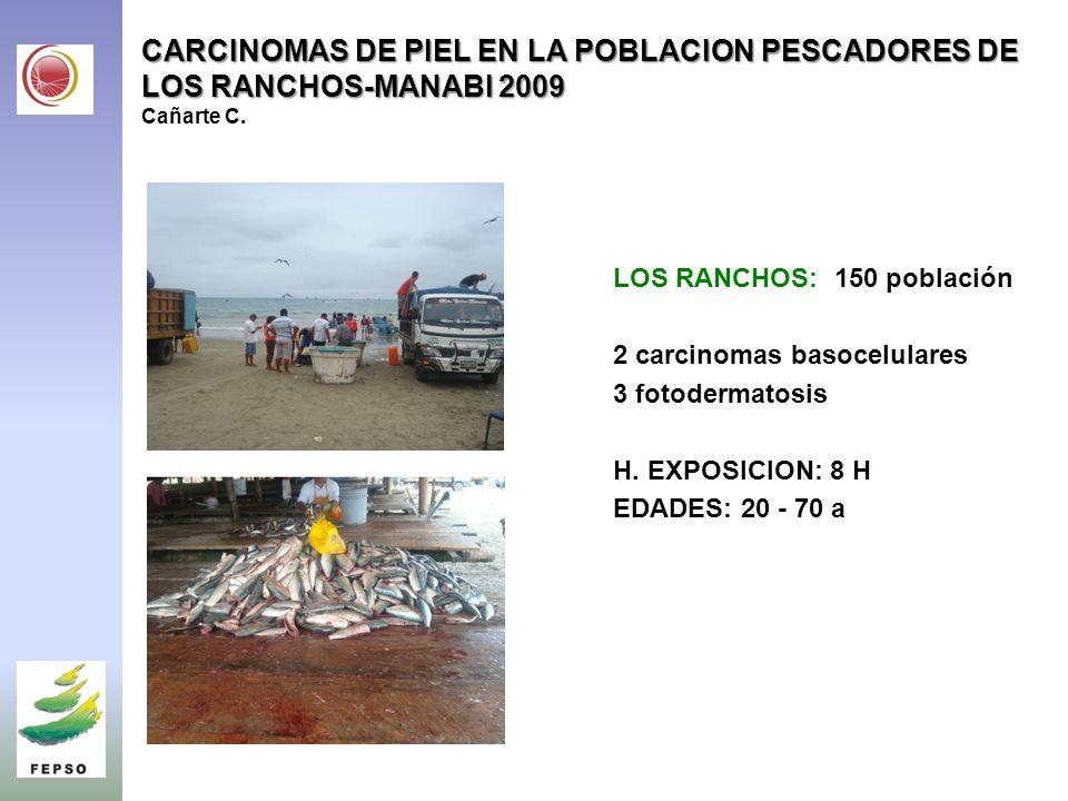 CARCINOMAS DE PIEL EN LA POBLACION PESCADORES DE LOS RANCHOS-MANABI 2009 Cañarte C.