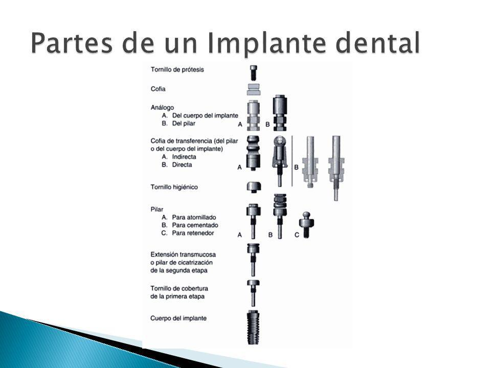 Partes de un Implante dental