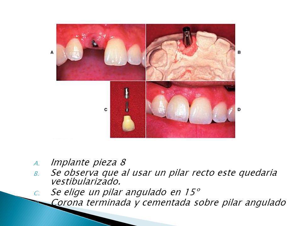 Implante pieza 8 Se observa que al usar un pilar recto este quedaria vestibularizado. Se elige un pilar angulado en 15º.
