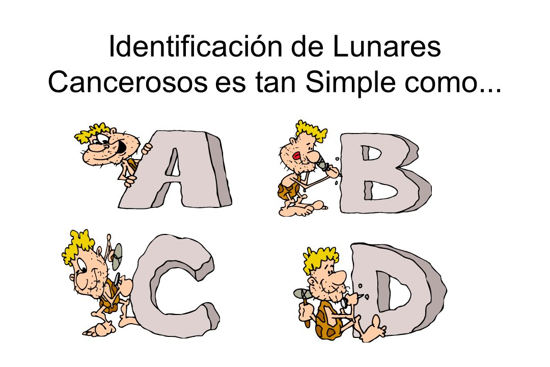 Identificación de Lunares Cancerosos es tan Simple como...