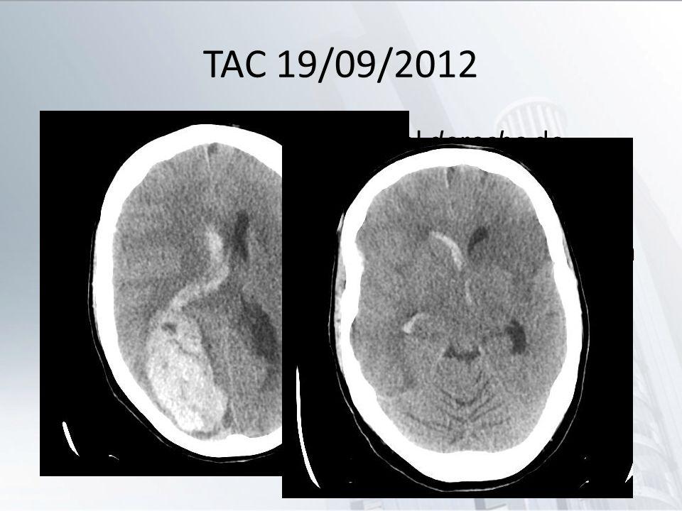 TAC 19/09/2012