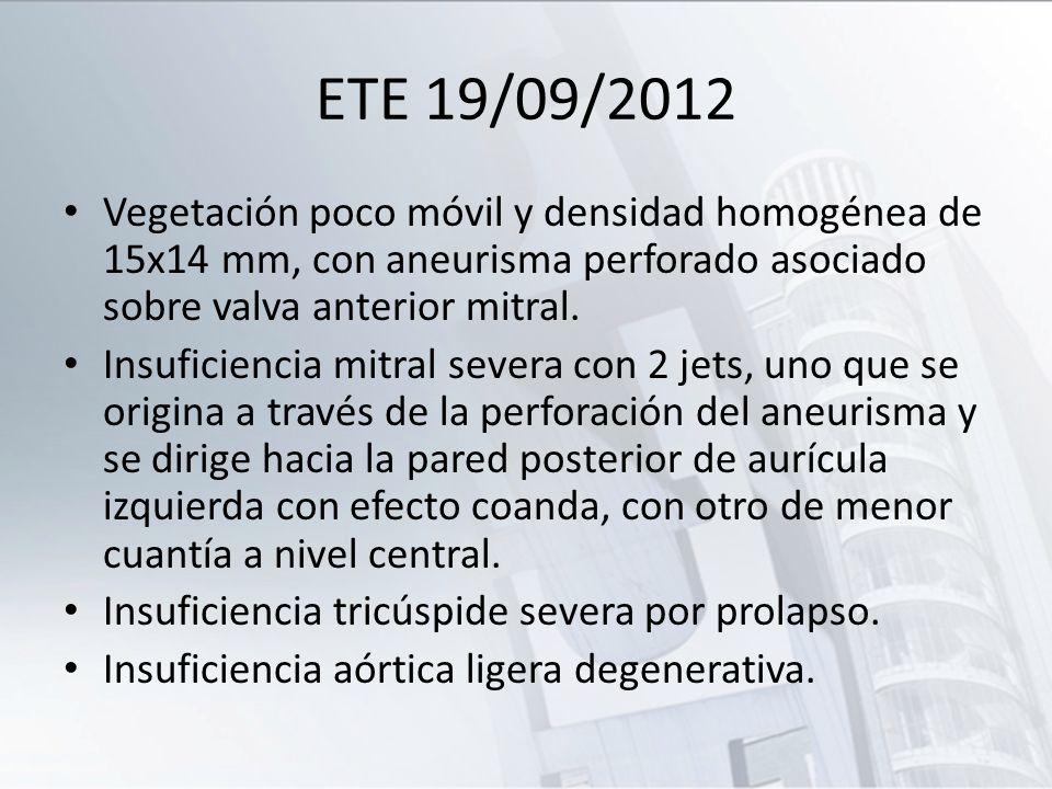 ETE 19/09/2012 Vegetación poco móvil y densidad homogénea de 15x14 mm, con aneurisma perforado asociado sobre valva anterior mitral.