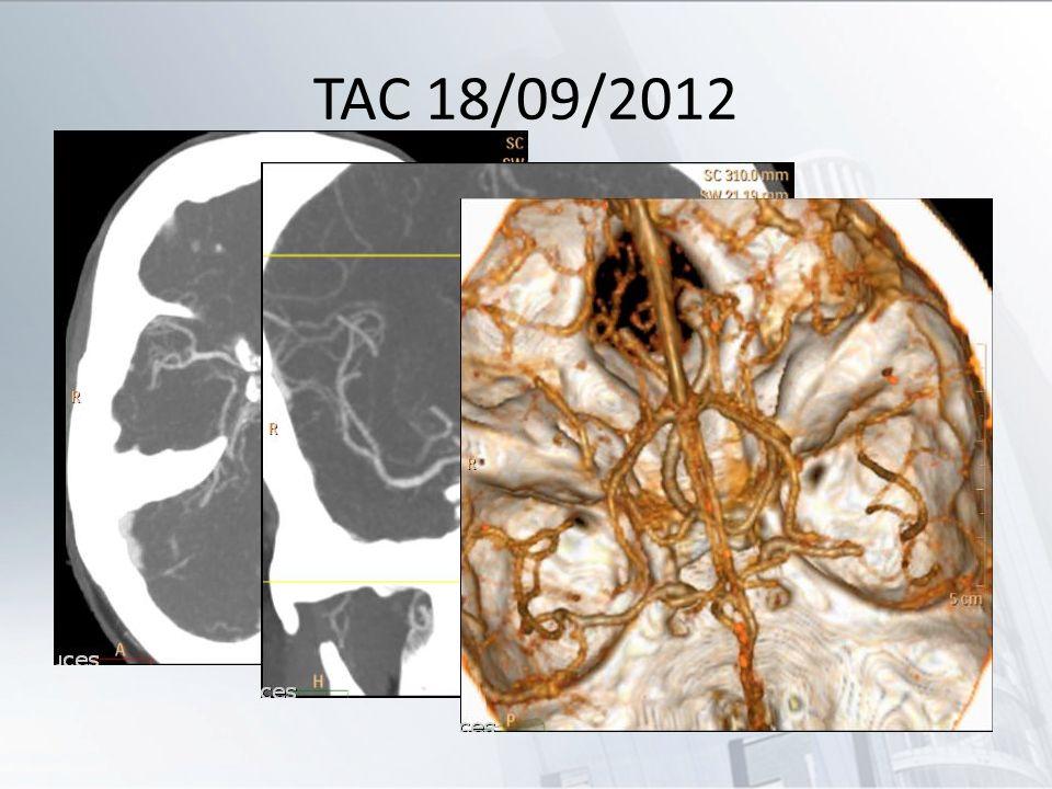 TAC 18/09/2012 Trombo en segmento distal de M1 izquierda.