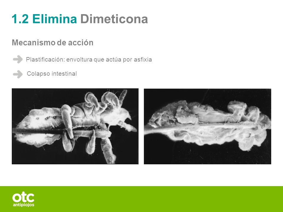 1.2 Elimina Dimeticona Mecanismo de acción