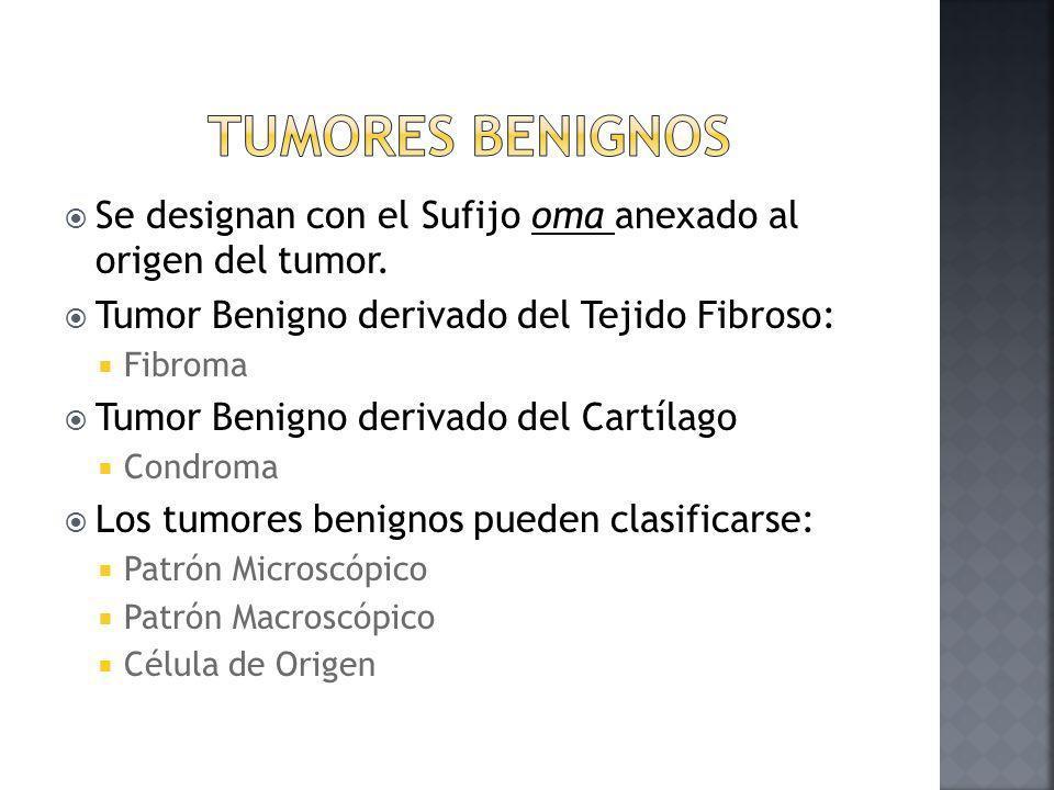 Tumores Benignos Se designan con el Sufijo oma anexado al origen del tumor. Tumor Benigno derivado del Tejido Fibroso: