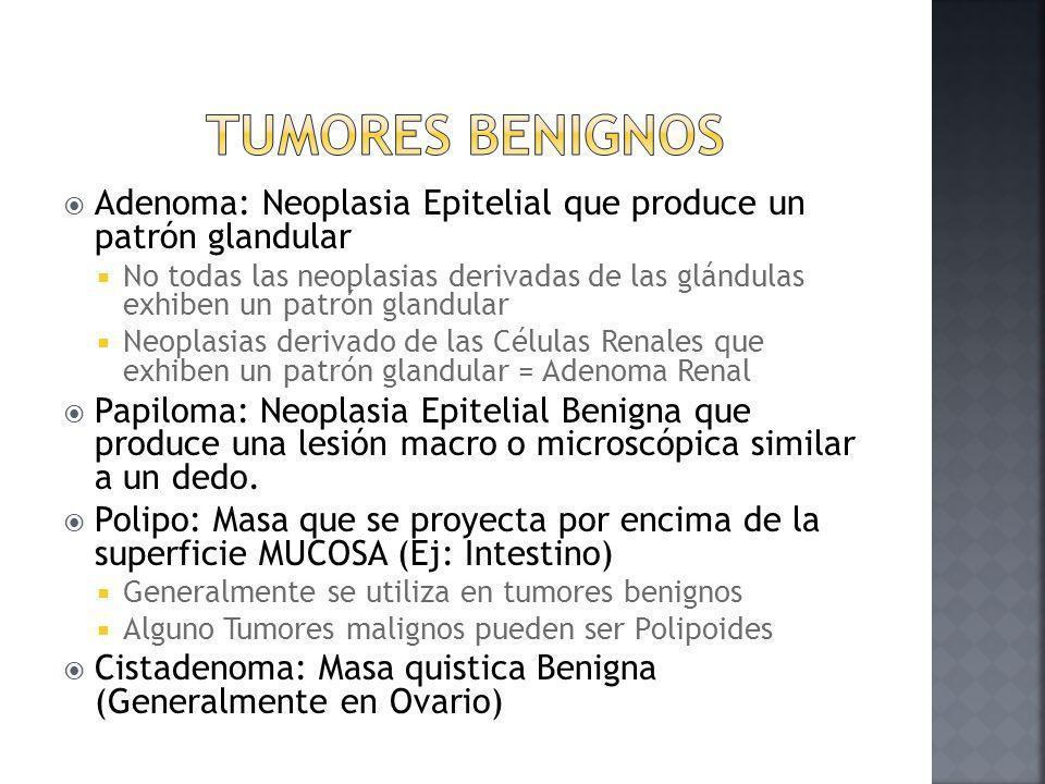 Tumores Benignos Adenoma: Neoplasia Epitelial que produce un patrón glandular.