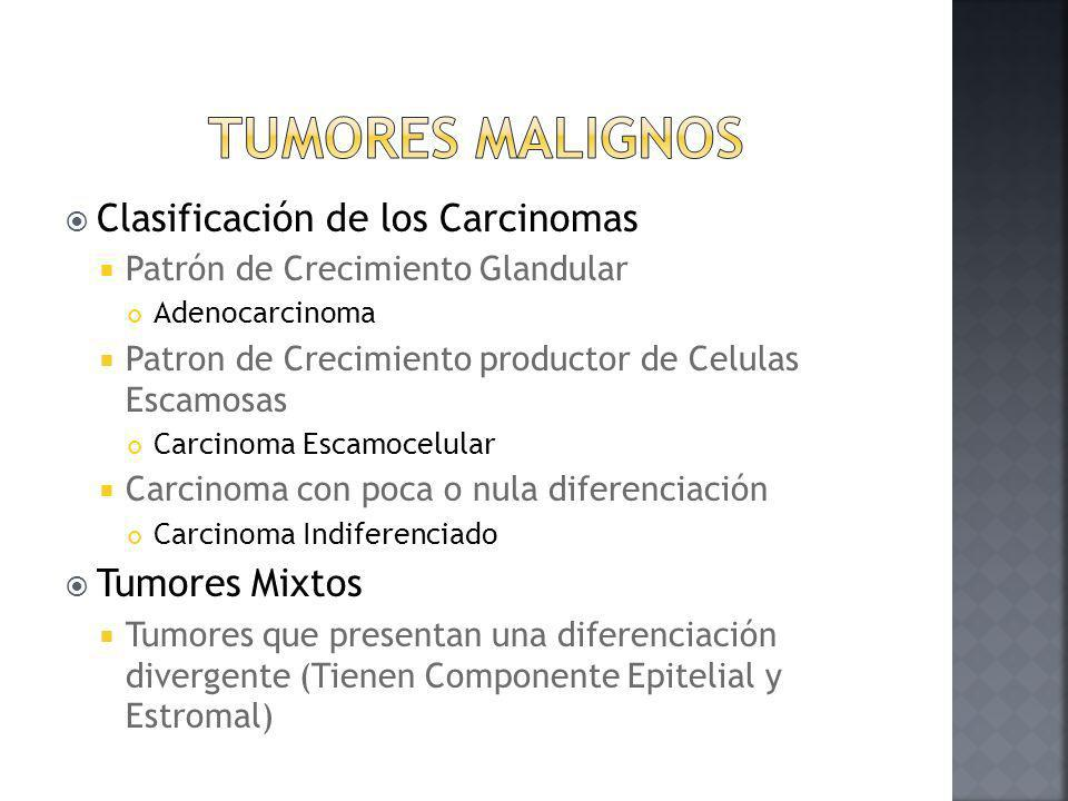 Tumores Malignos Clasificación de los Carcinomas Tumores Mixtos