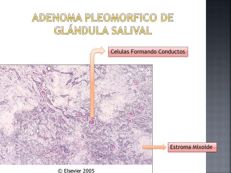 Adenoma Pleomorfico de Glándula salival