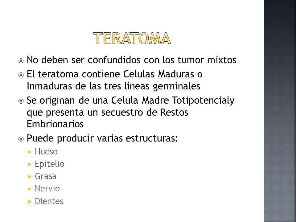 Teratoma No deben ser confundidos con los tumor mixtos