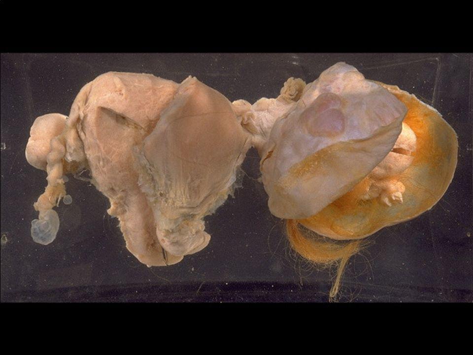 Teratoma, ovary