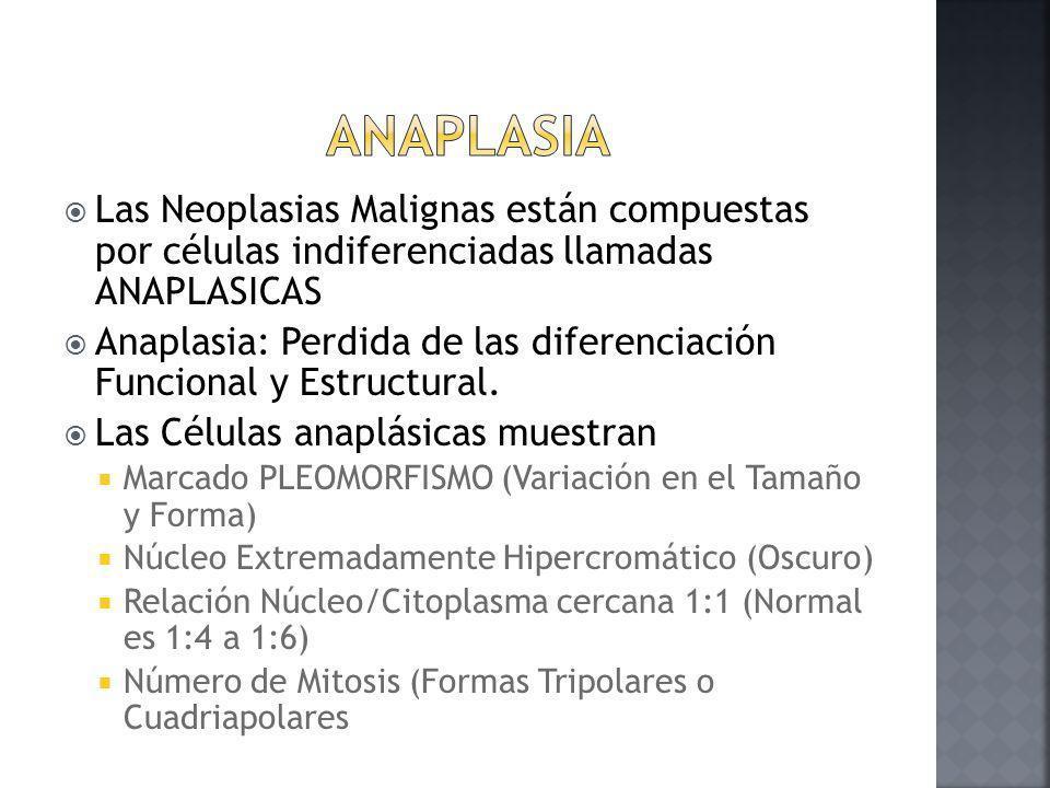 Anaplasia Las Neoplasias Malignas están compuestas por células indiferenciadas llamadas ANAPLASICAS.