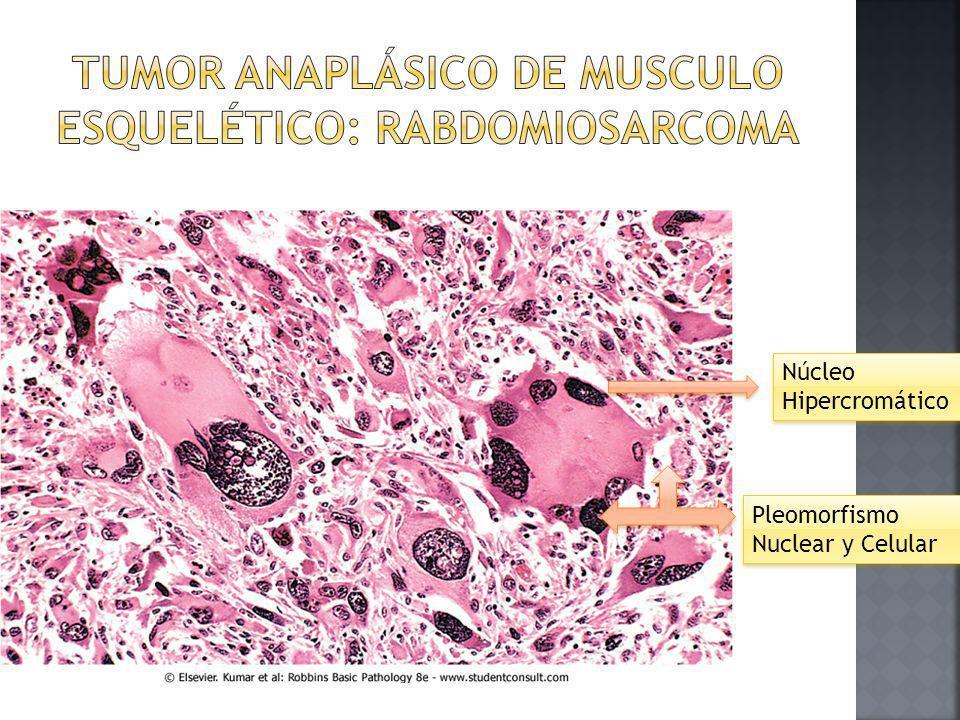 tumor anaplásico de musculo esquelético: rabdomiosarcoma