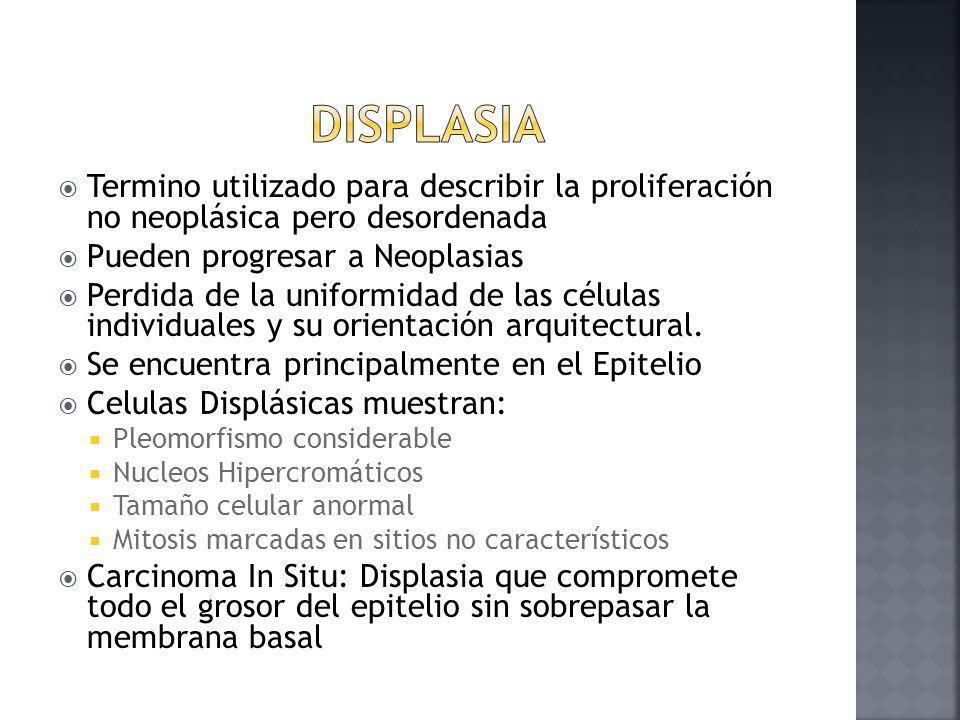 Displasia Termino utilizado para describir la proliferación no neoplásica pero desordenada. Pueden progresar a Neoplasias.