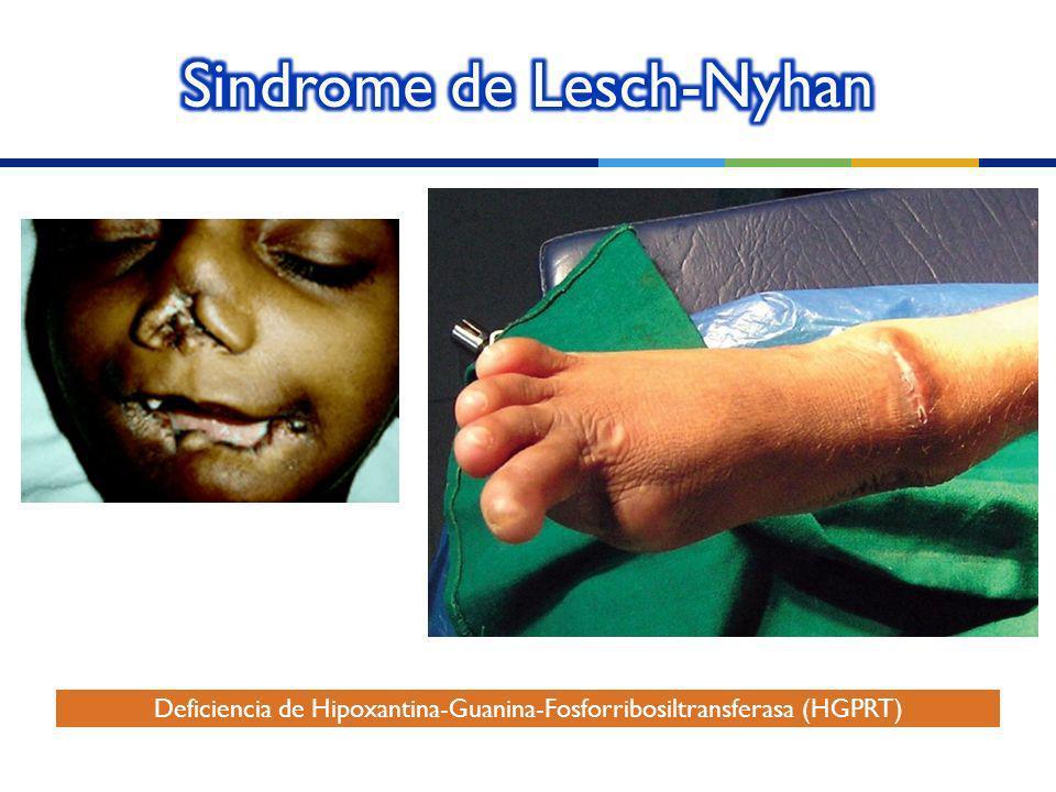 Sindrome de Lesch-Nyhan