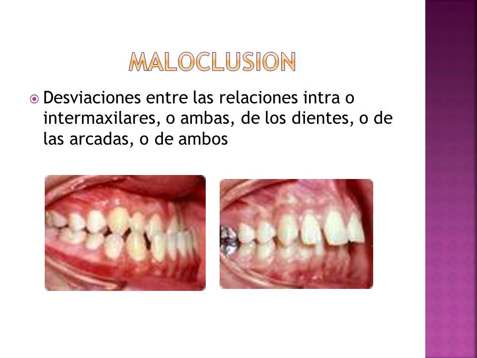 maloclusion Desviaciones entre las relaciones intra o intermaxilares, o ambas, de los dientes, o de las arcadas, o de ambos.
