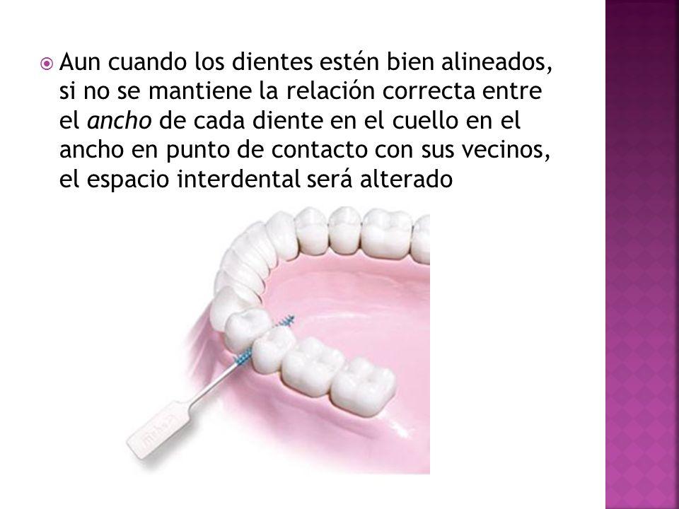 Aun cuando los dientes estén bien alineados, si no se mantiene la relación correcta entre el ancho de cada diente en el cuello en el ancho en punto de contacto con sus vecinos, el espacio interdental será alterado