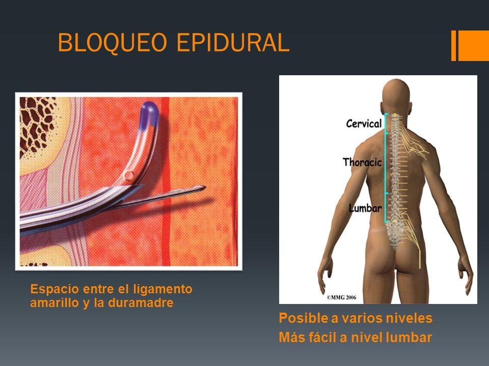BLOQUEO EPIDURAL Posible a varios niveles Más fácil a nivel lumbar