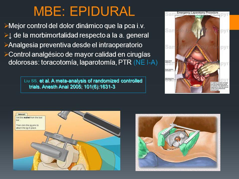 MBE: EPIDURAL Mejor control del dolor dinámico que la pca i.v.