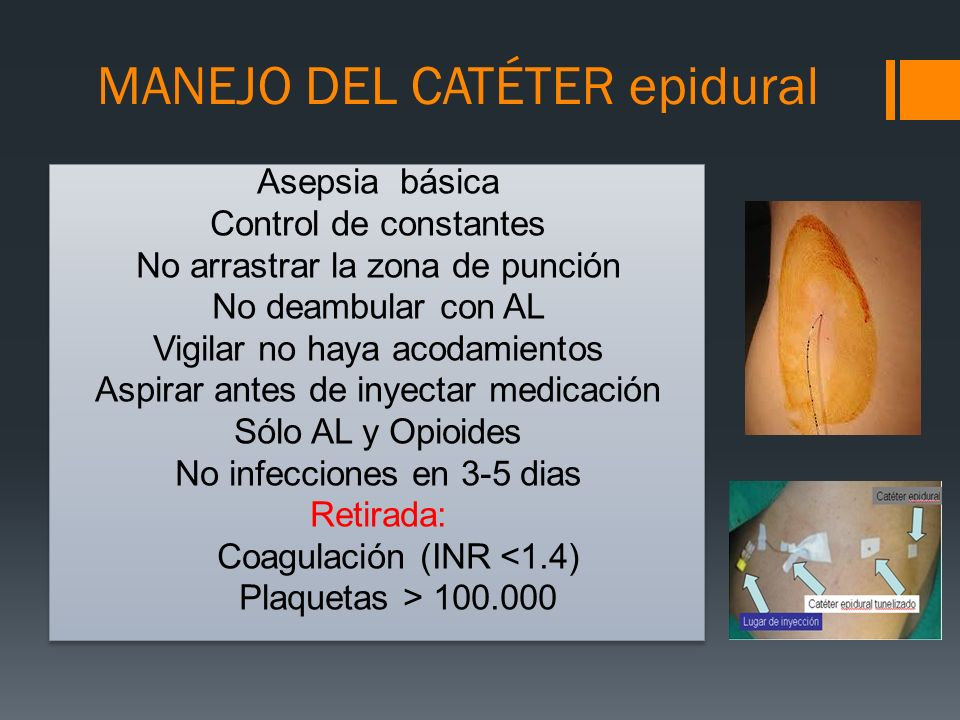 MANEJO DEL CATÉTER epidural