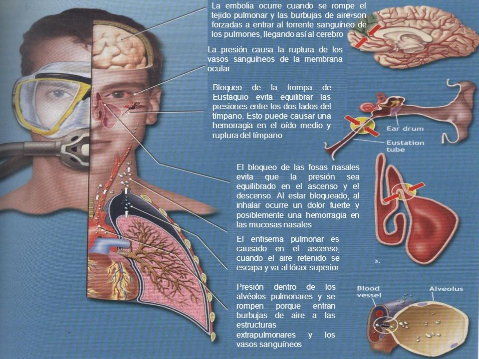La embolia ocurre cuando se rompe el tejido pulmonar y las burbujas de aire son forzadas a entrar al torrente sanguíneo de los pulmones, llegando así al cerebro