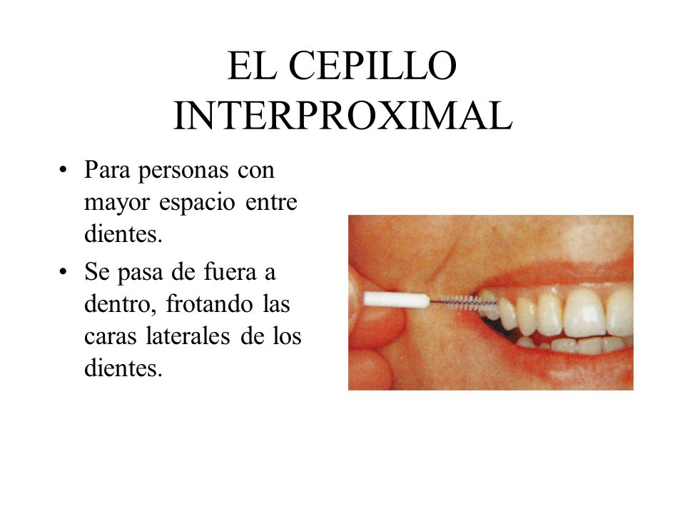 EL CEPILLO INTERPROXIMAL