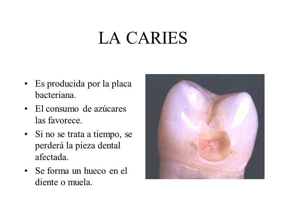 LA CARIES Es producida por la placa bacteriana.