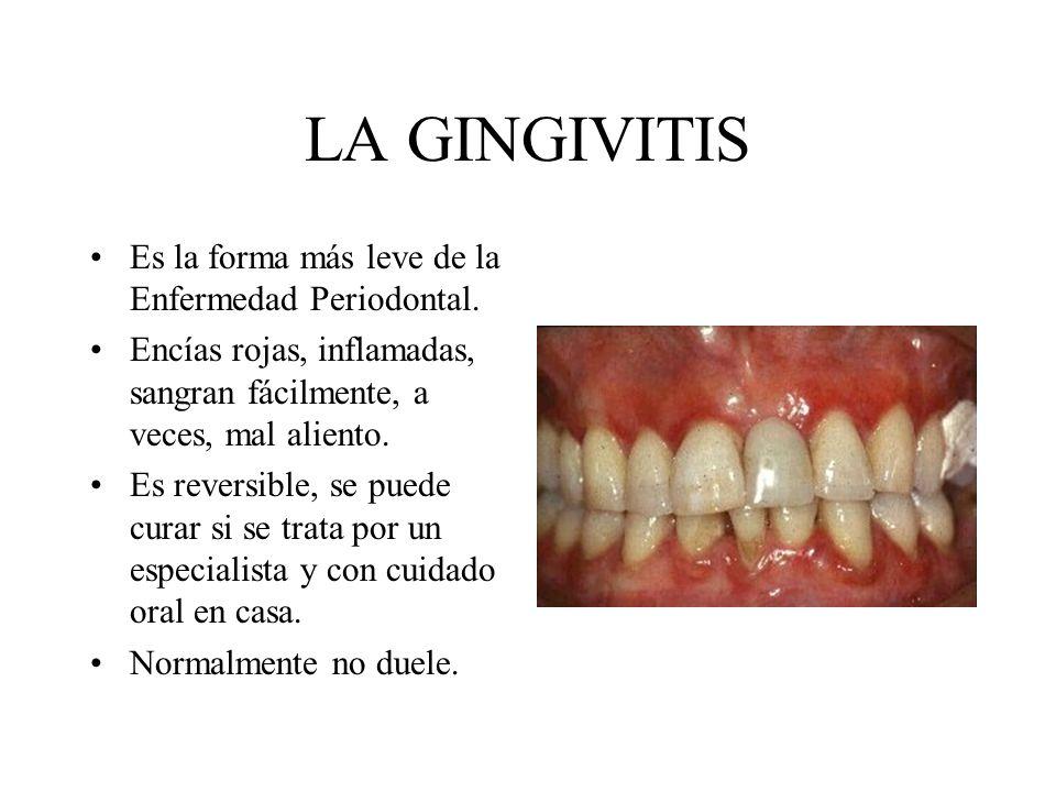 LA GINGIVITIS Es la forma más leve de la Enfermedad Periodontal.