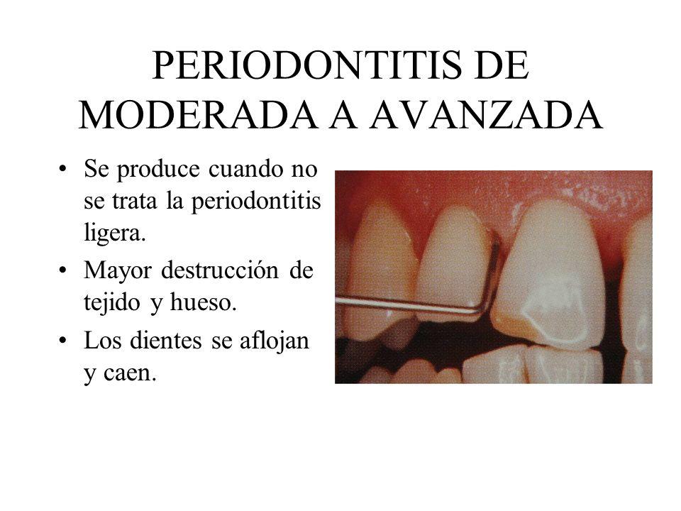 PERIODONTITIS DE MODERADA A AVANZADA