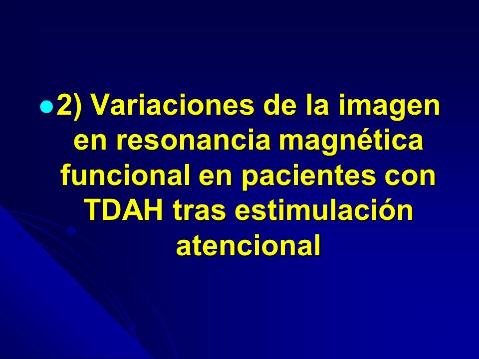 2) Variaciones de la imagen en resonancia magnética funcional en pacientes con TDAH tras estimulación atencional
