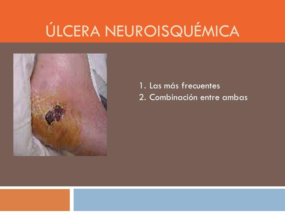 Úlcera neuroisquémica