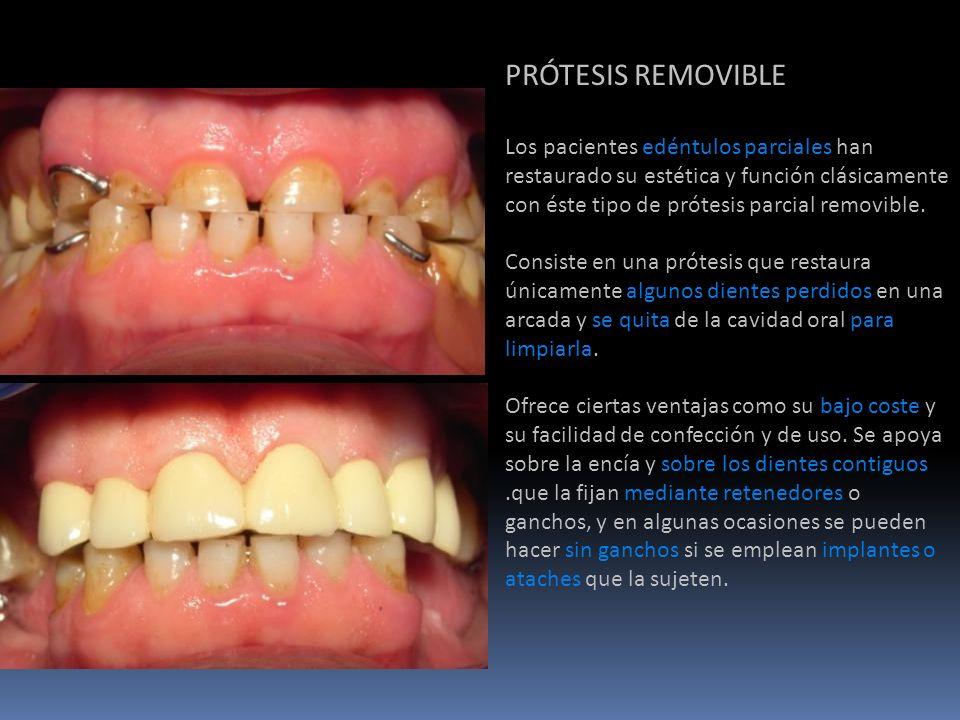 PRÓTESIS REMOVIBLE Los pacientes edéntulos parciales han restaurado su estética y función clásicamente con éste tipo de prótesis parcial removible.