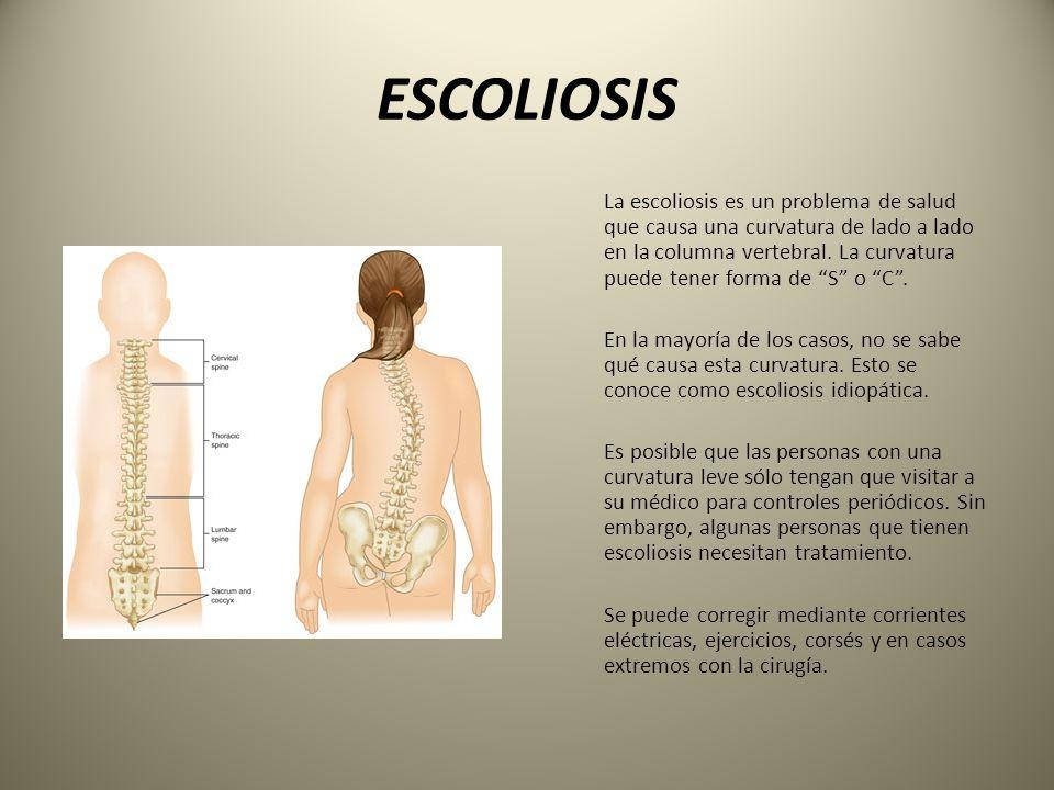 Excepcional C Columna Vertebral Ornamento - Anatomía de Las ...