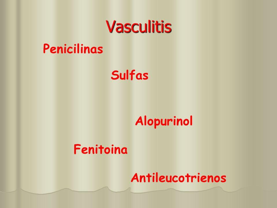 Vasculitis Penicilinas Sulfas Alopurinol Fenitoina Antileucotrienos