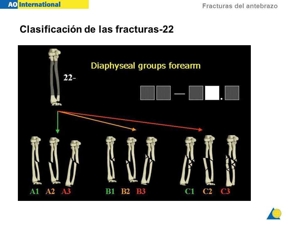 Clasificación de las fracturas-22
