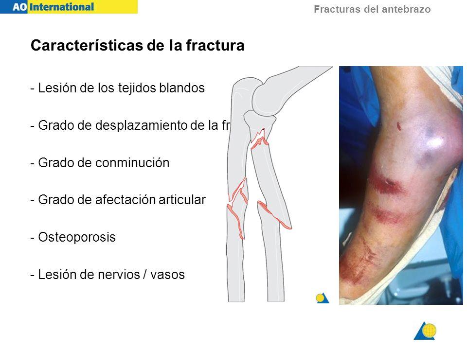 Características de la fractura