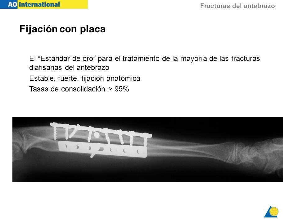 Fijación con placa El Estándar de oro para el tratamiento de la mayoría de las fracturas diafisarias del antebrazo.