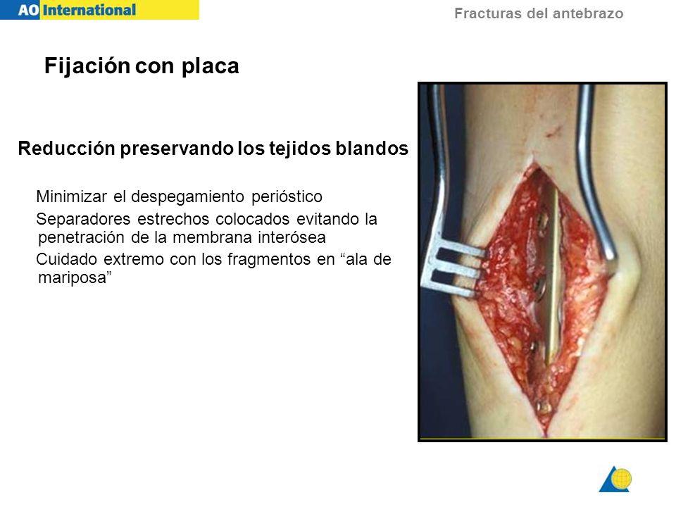 Fijación con placa Reducción preservando los tejidos blandos