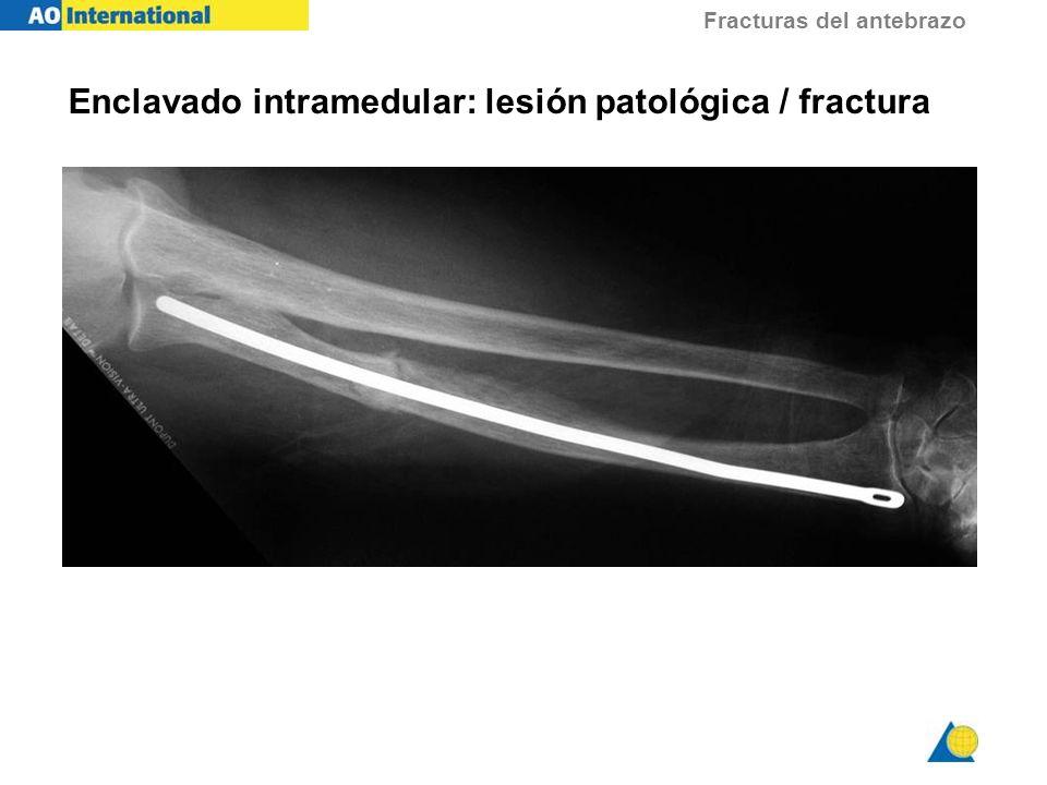 Enclavado intramedular: lesión patológica / fractura