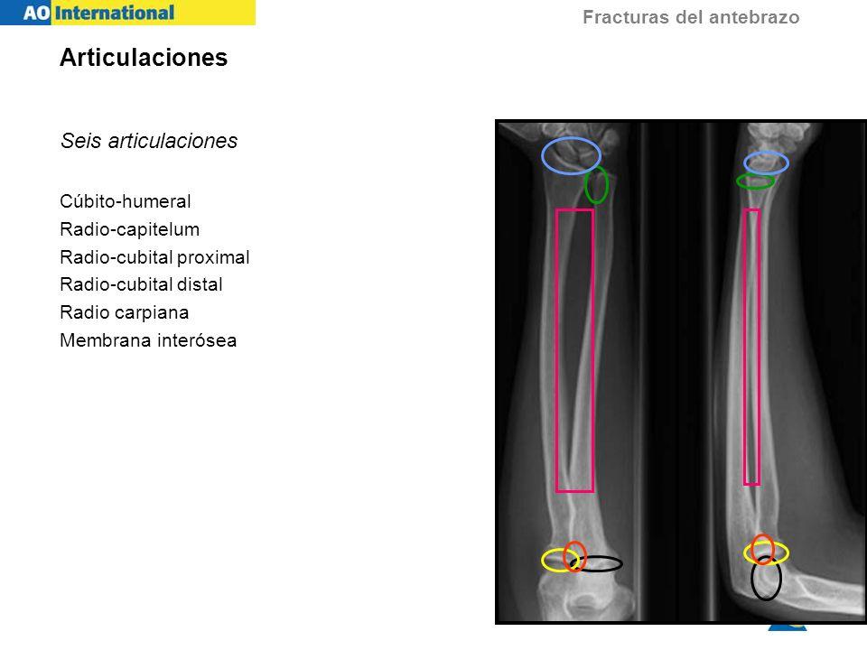 Articulaciones Seis articulaciones Cúbito-humeral Radio-capitelum