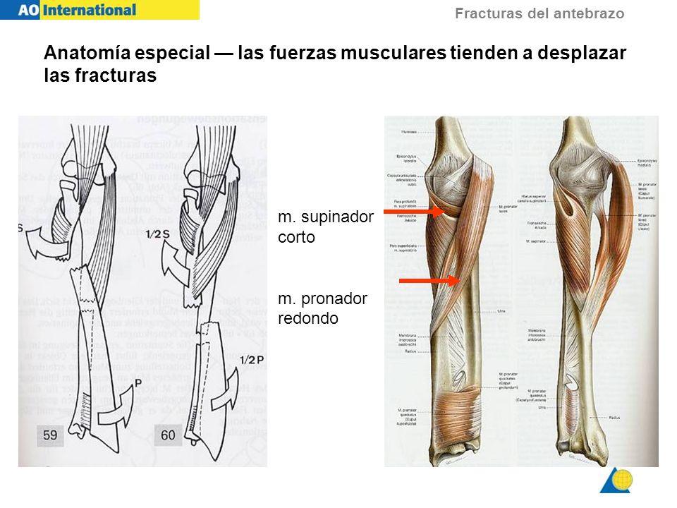 Anatomía especial — las fuerzas musculares tienden a desplazar las fracturas