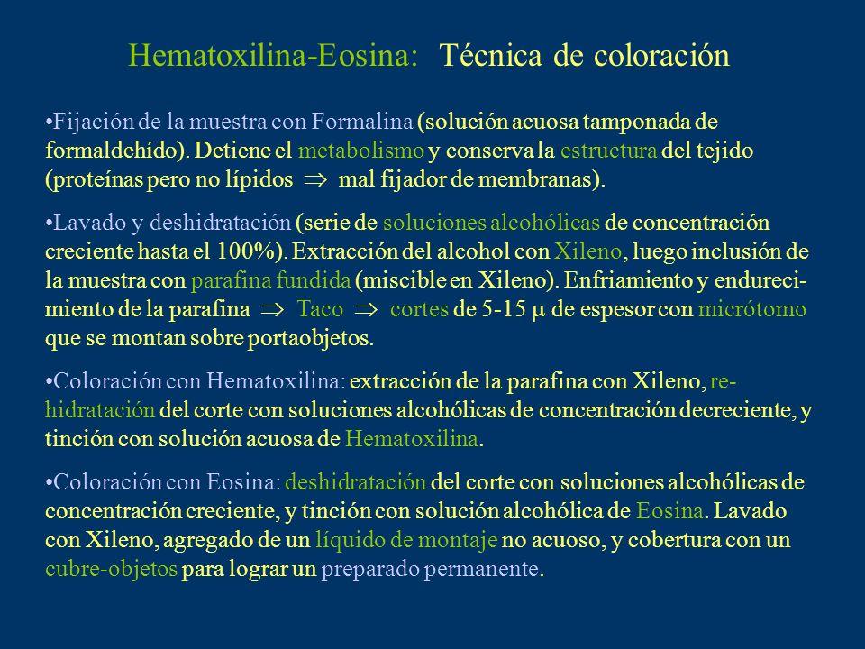 Hematoxilina-Eosina: Técnica de coloración