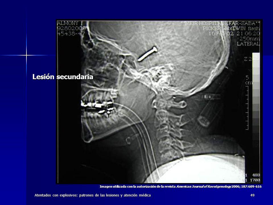 Lesión secundaria Imagen utilizada con la autorización de la revista American Journal of Roentgenology 2006; 187:609-616.