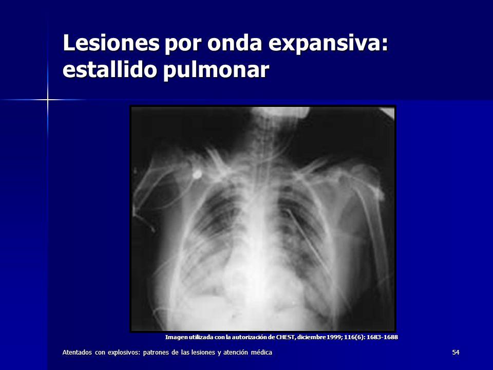 Lesiones por onda expansiva: estallido pulmonar