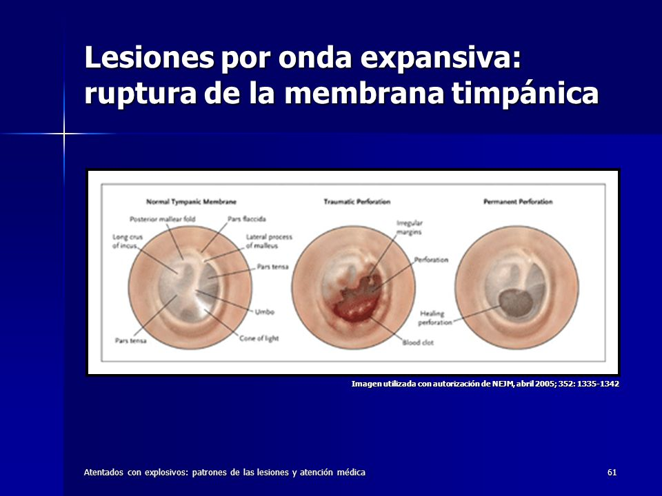 Lesiones por onda expansiva: ruptura de la membrana timpánica