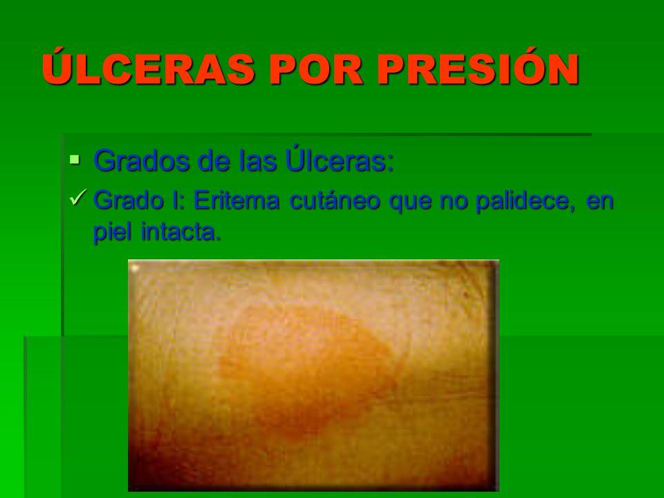 ÚLCERAS POR PRESIÓN Grados de las Úlceras: