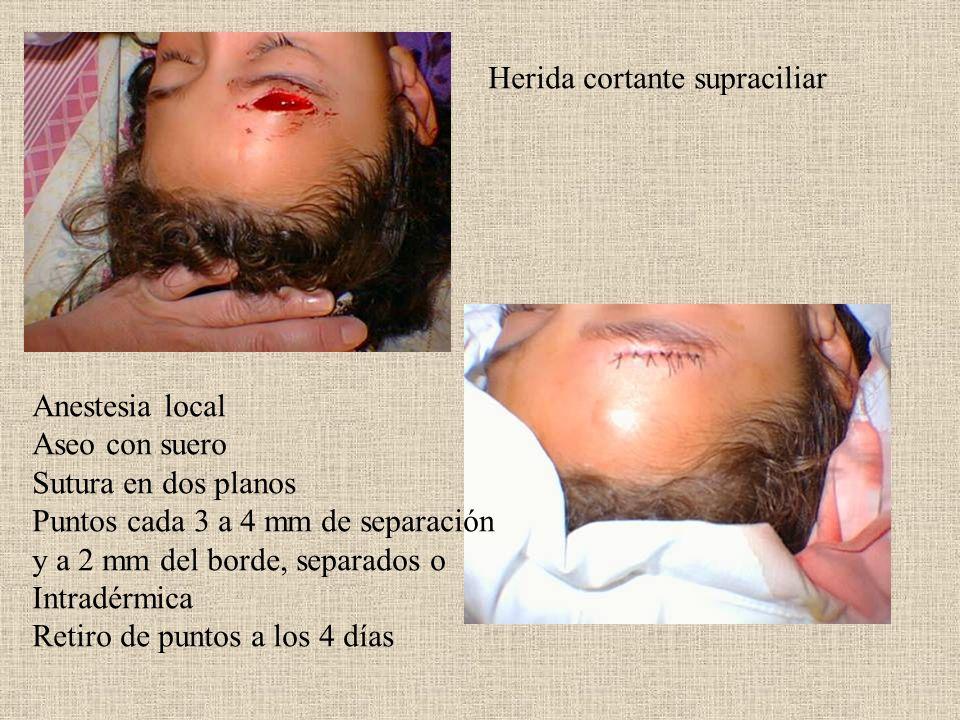 Herida cortante supraciliar