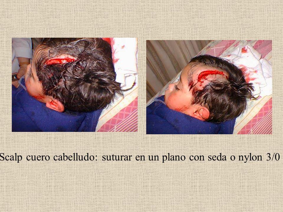 Scalp cuero cabelludo: suturar en un plano con seda o nylon 3/0