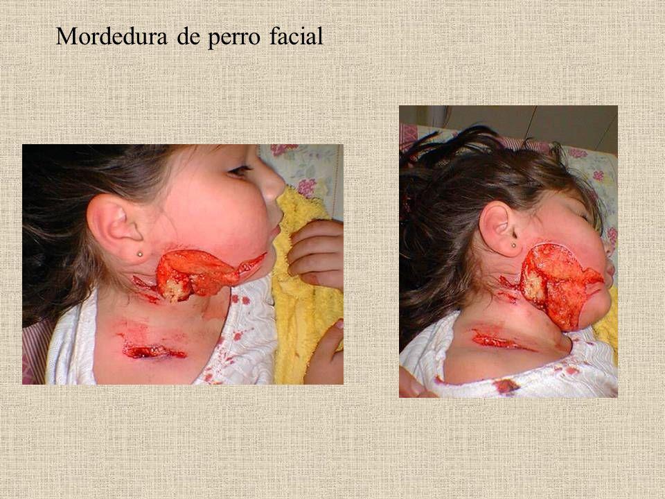 Mordedura de perro facial