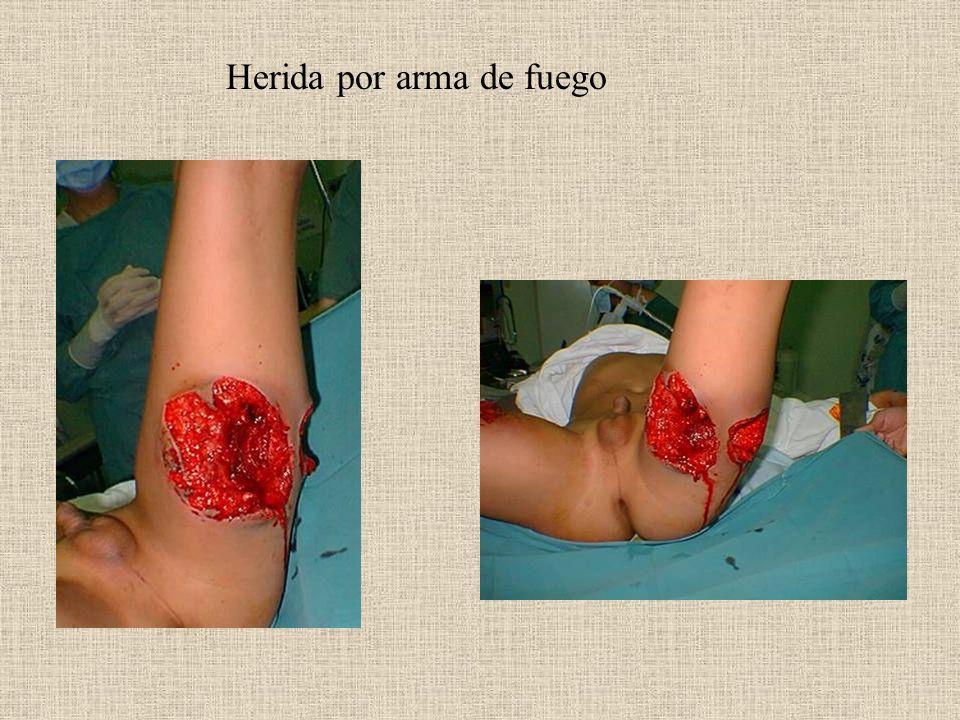 Herida por arma de fuego